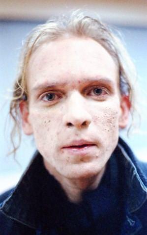 fake acne