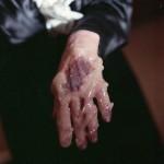 melting wax hand